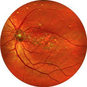 Auch mit einer Makuladegeneration ist in vielen Fällen ein gutes Sehen in der Nähe möglich.